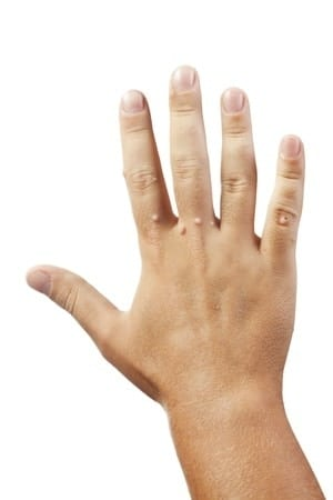 10319441 - hand with warts isolated on white background